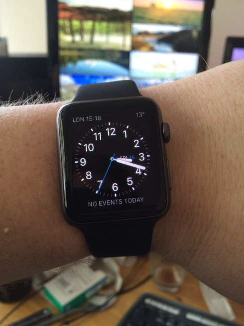 A wrist, with a watch on it.
